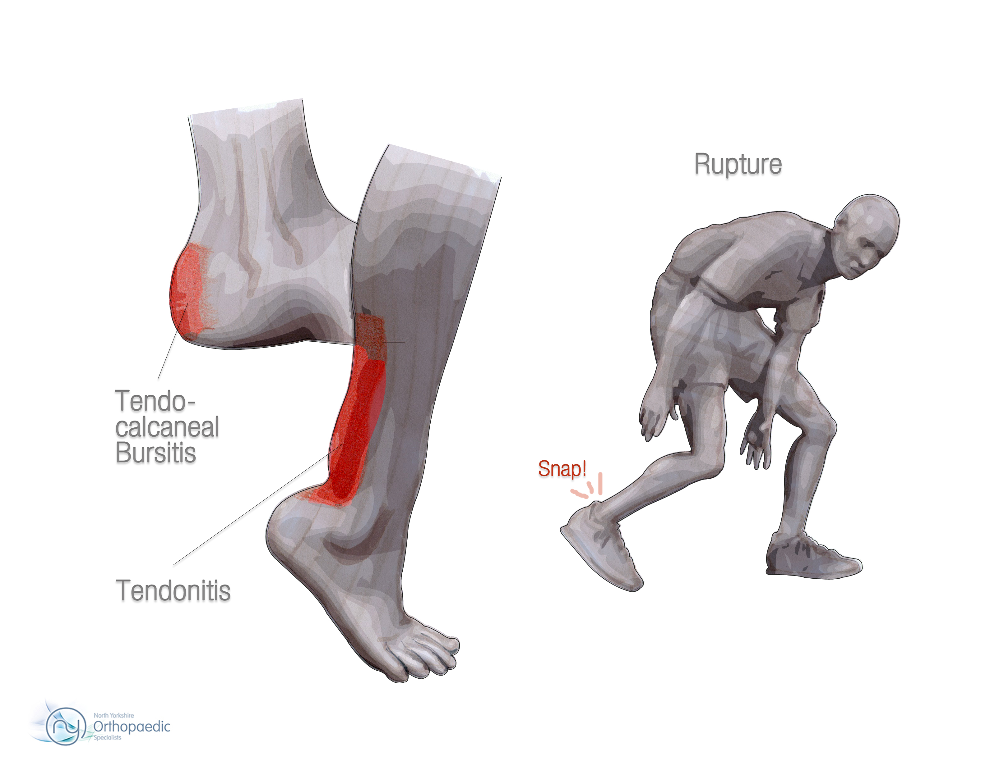 Achilles tendon rupture physical therapy - Why Does It Happen