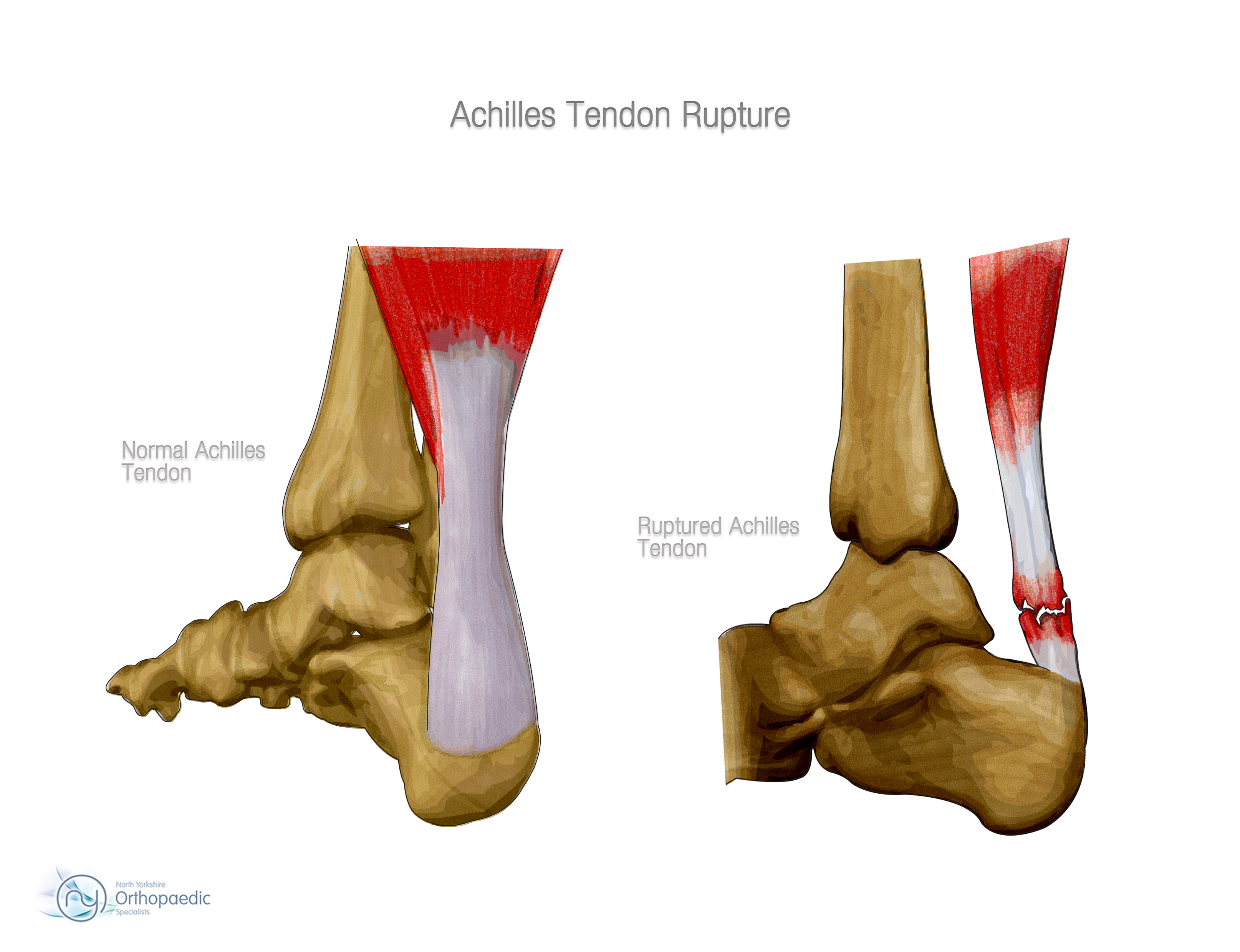 Achilles tendon rupture physical therapy - Achilles Rupture