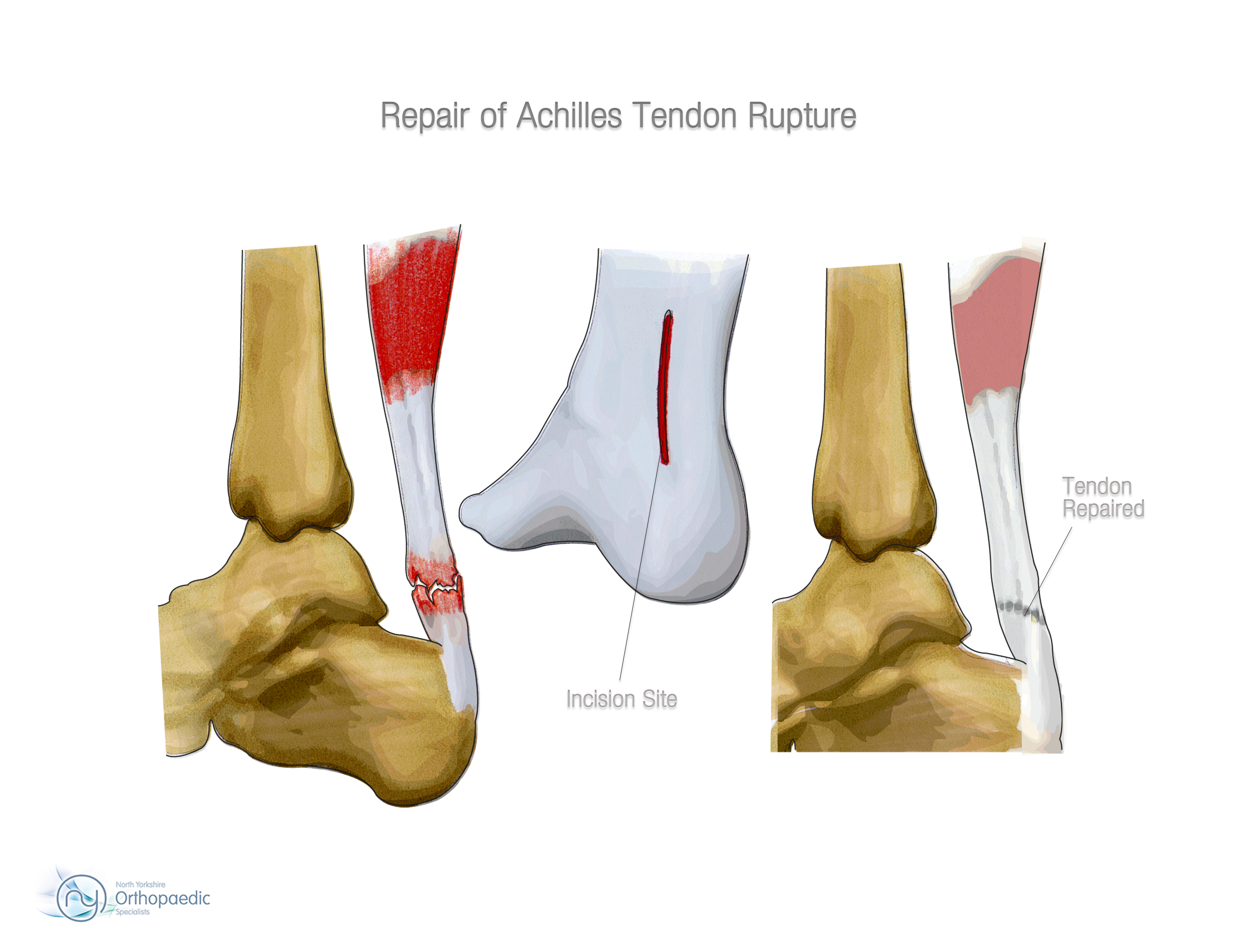 Achilles tendon rupture physical therapy - Post Surgery Rehabilitation