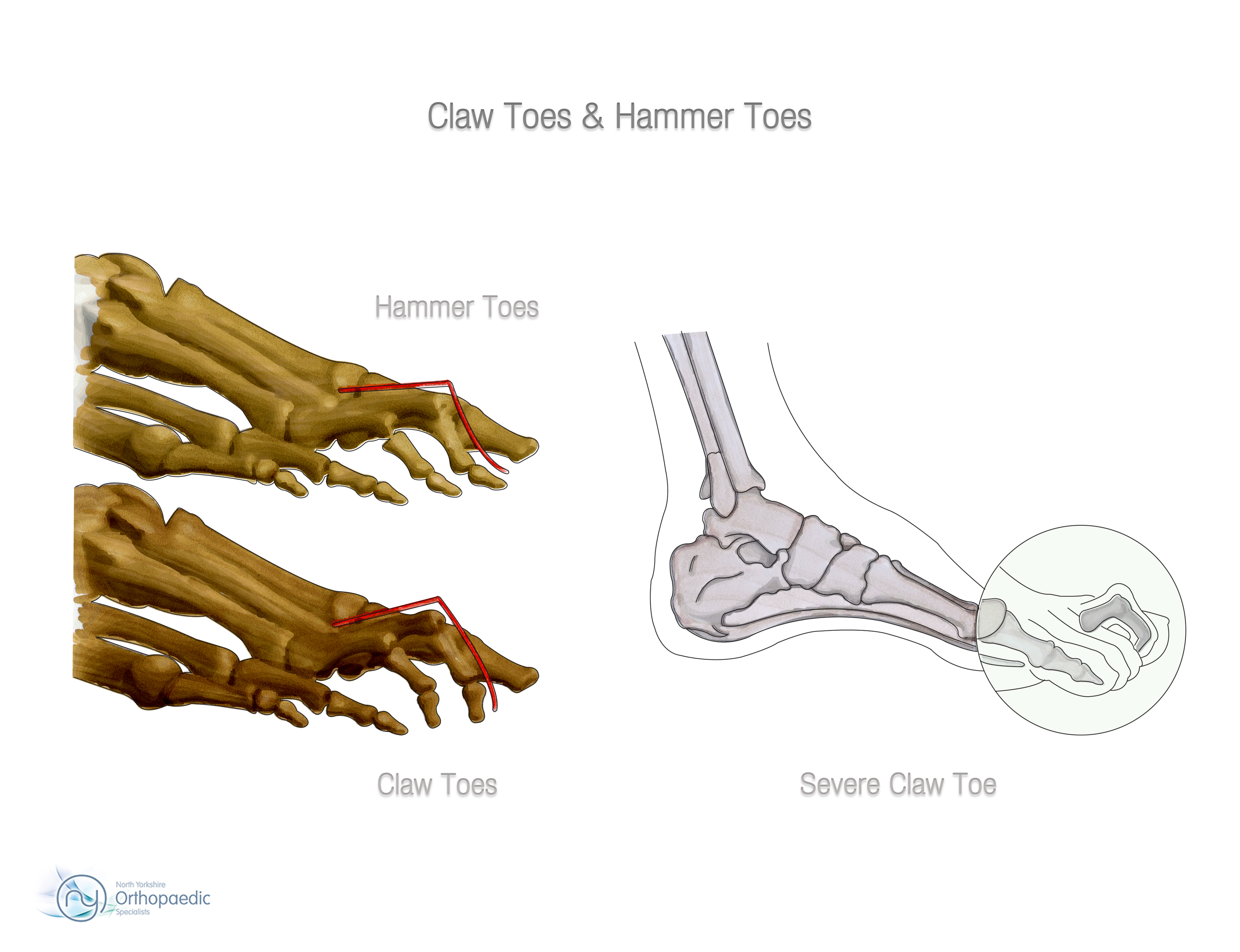 Nerve Damage In Toe From Shoes