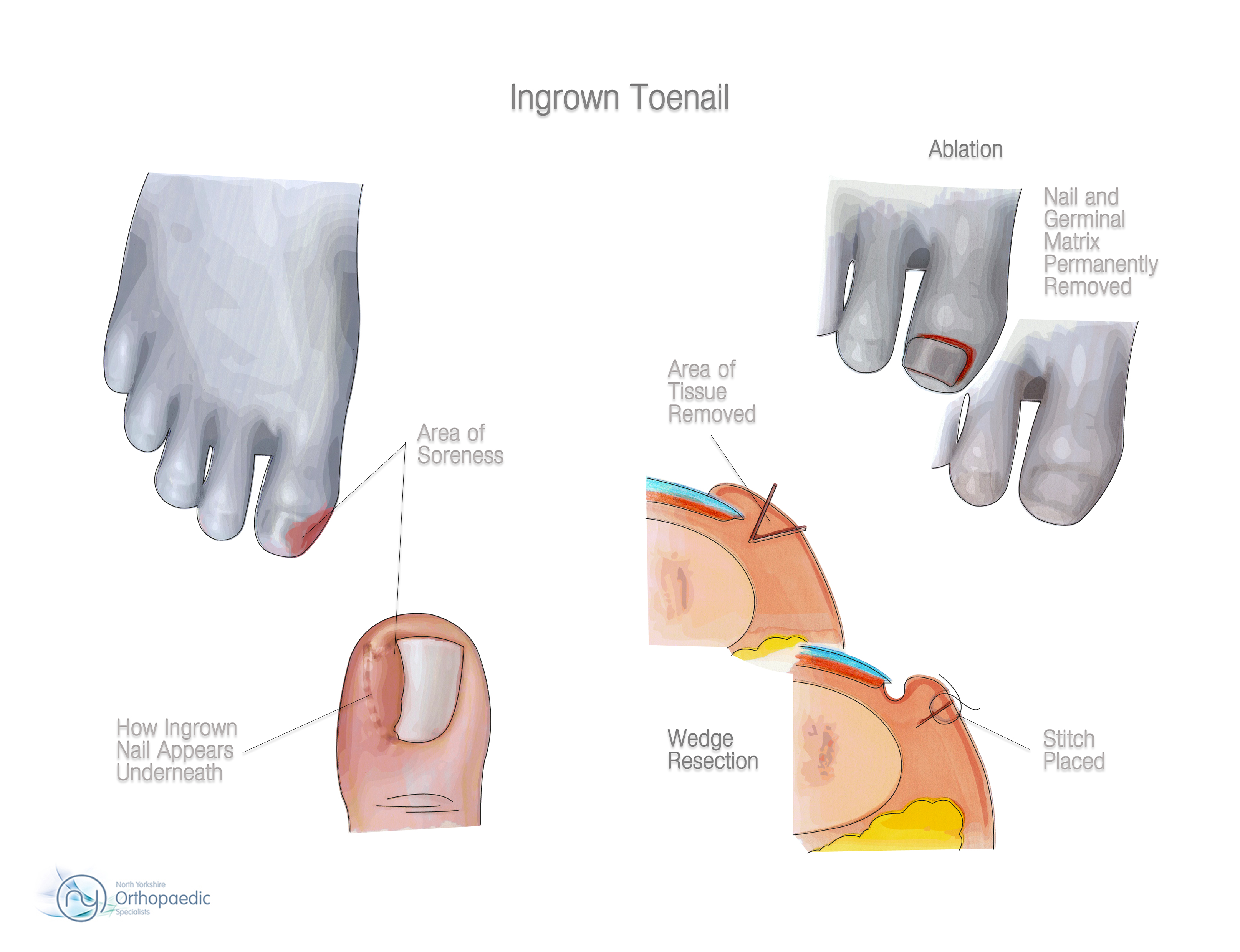 Ingrown Toenail | Orthopaedic - Adam Budgen